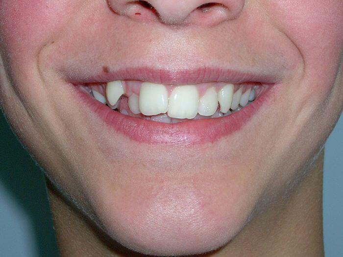 Симптоми на челюстта