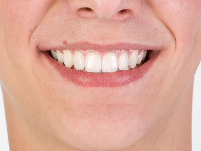 Артрит на лицева челюст